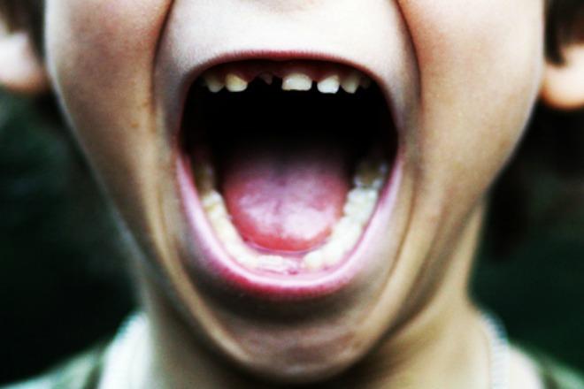 #1505 Baby Teeth